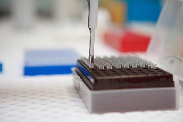 Lab test samples